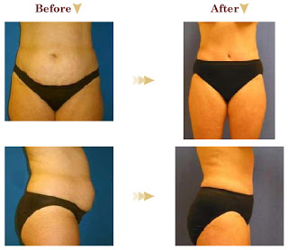 Plastic Surgery Procedure Of The Month The Tummy Tuck Beauty Is